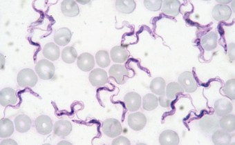Could human infective 'Trypanosoma evansi' escape sub-Saharan Africa?
