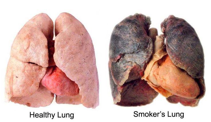 Υγιείς πνεύμονες και πνευμόνια καπνιστού μετά από 10 χρόνια καπνίσματος
