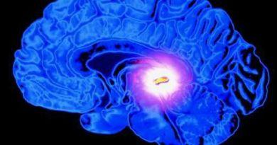 5 manières de décalcifier la glande pinéale
