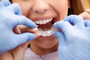Benefits-dentist-delivered-clear-aligner-programs