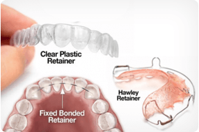 different-types-orthodontic-retainers