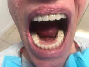 Ali-John-Jazayeri-All-on-Four-Dental-Implant-After-2