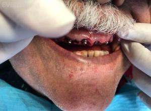 Ali-John-Jazayeri-All-on-Four-Dental-Implant-After-3