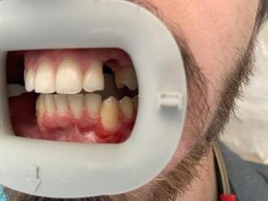 Ali-John-Jazayeri-Dental-Implant-Before-6