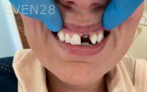 Ali-John-Jazayeri-Dental-Implant-Before-18