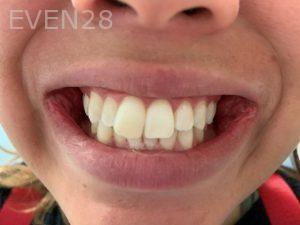 Ali-John-Jazayeri-Teeth-Whitening-After-4
