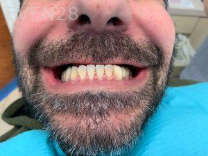Ali-John-Jazayeri-All-On-Four-Dental-Implant-Before-23