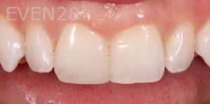 Joseph-Kabaklian-Dental-Bonding-After-2