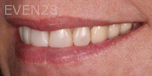 Joseph-Kabaklian-Dental-Bonding-After-3