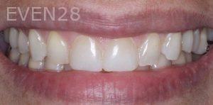 Joseph-Kabaklian-Dental-Bonding-After-5