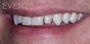 Joseph-Kabaklian-Dental-Crown-Before-1