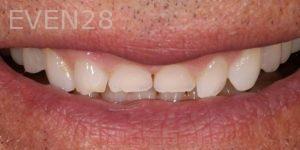 Joseph-Kabaklian-Dental-Crown-Before-2