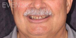 Joseph-Kabaklian-Smile-Makeover-Before-3