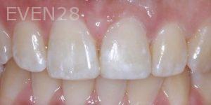 Joseph-Kabaklian-Teeth-Whitening-After-6