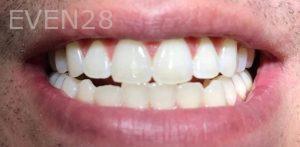 Joseph-Kabaklian-Teeth-Whitening-After-7