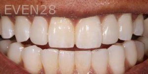 Joseph-Kabaklian-Teeth-Whitening-Before-3