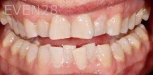 Joseph-Kabaklian-Teeth-Whitening-Before-4