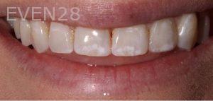 Joseph-Kabaklian-Teeth-Whitening-Before-5