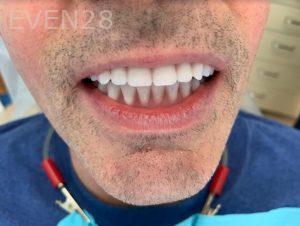 Ali-John-Jazayeri-Dental-Implant-All-on-Four-After-1b