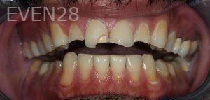 Amir-Larijani-Full-Mouth-Restoration-before-1b