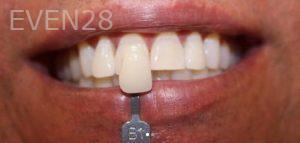 Amir-Larijani-Teeth-Whitening-after-1