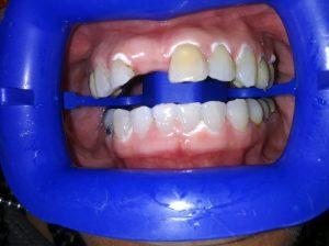 Ali-John-Jazayeri-Teeth-Whitening-after-1