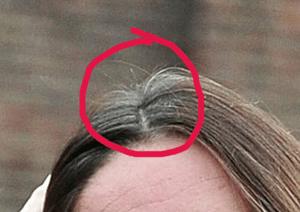 kate's head