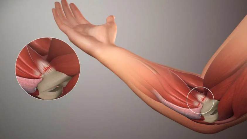 How Massage Therapy can Help Golfer's Elbow? - Massage ...
