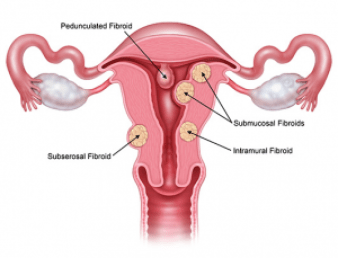 GNLD Products for shrinking melting and treating uterine fibroid issues in women