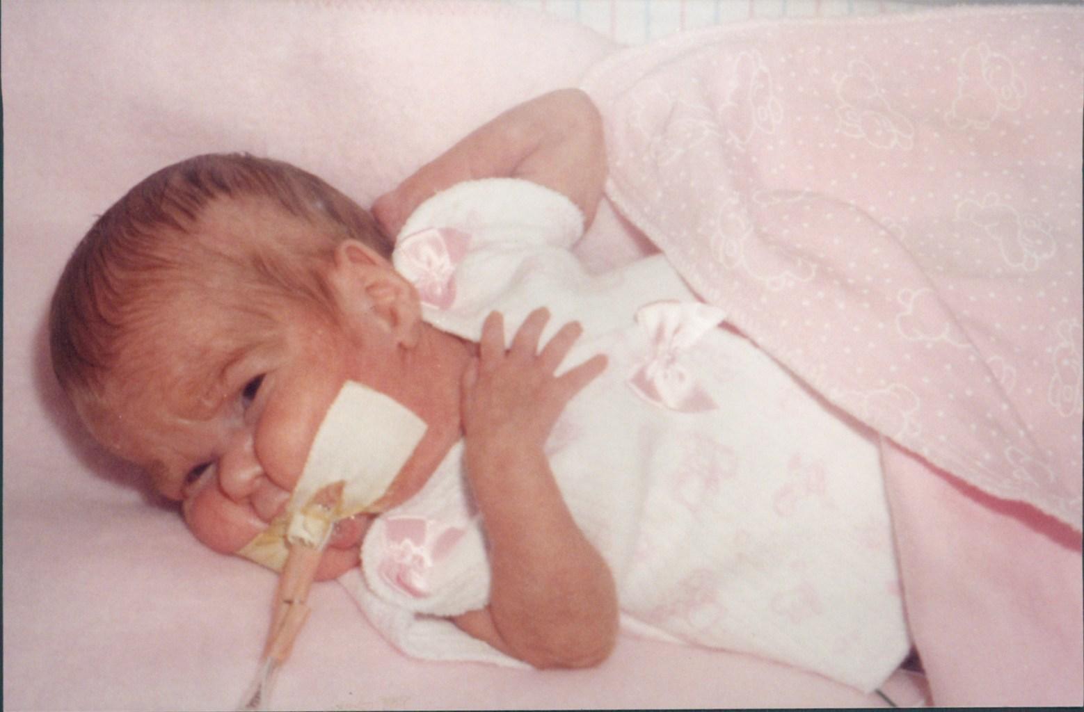Image: Louisa wearing bows in the NICU