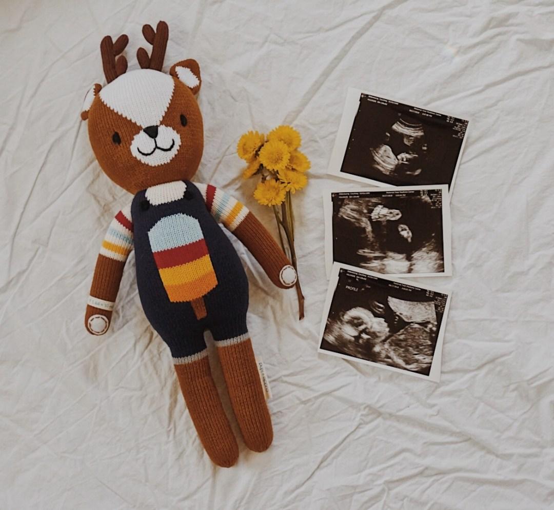 20 Week Bumpdate | Pregnancy Update