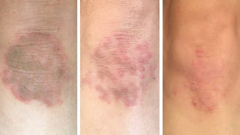 ee before and after eczema cream