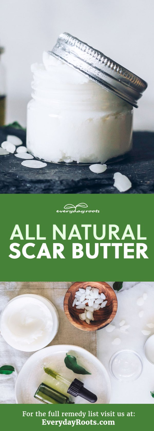 Use this homemade scar butter with shea and avocado oil.