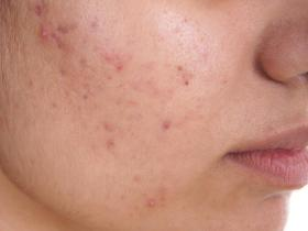 Stress Acne and Treatment EveryDay Stunner