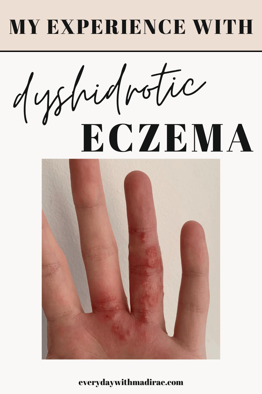 My hand with Dyshidrotic Eczema
