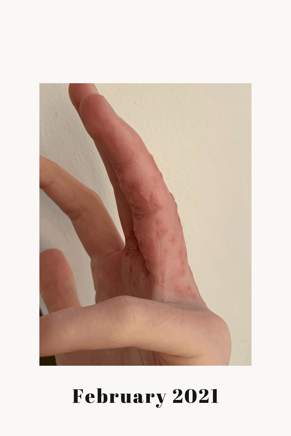 A side view showing the vesicles of my eczema.