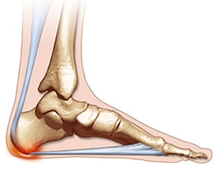 bruised-heel-foot