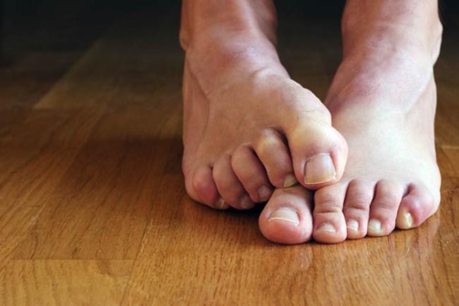 feet odor