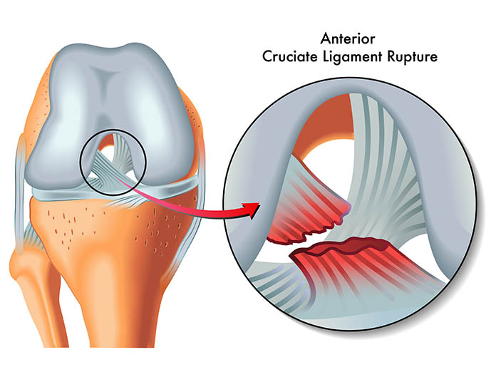 anterior cruciate ligament rupture