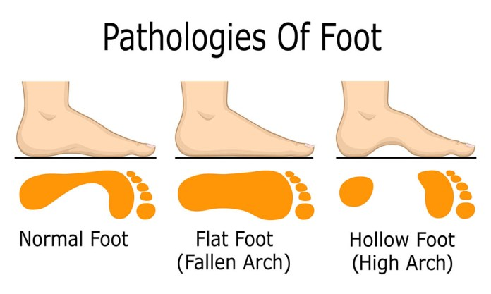Foot-Pathologies
