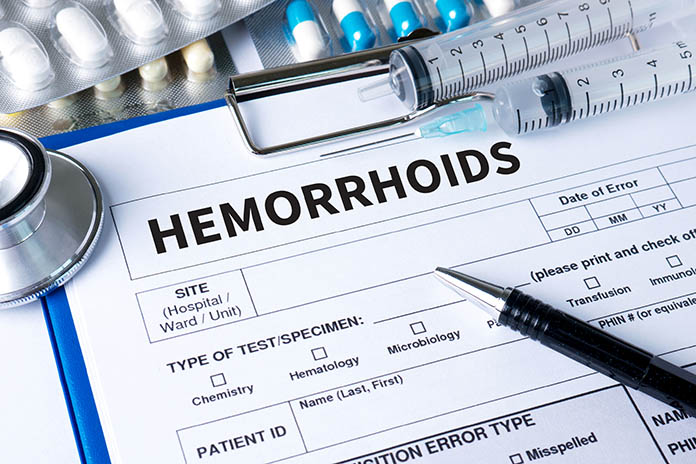 Causes-Of-Hemorrhoids