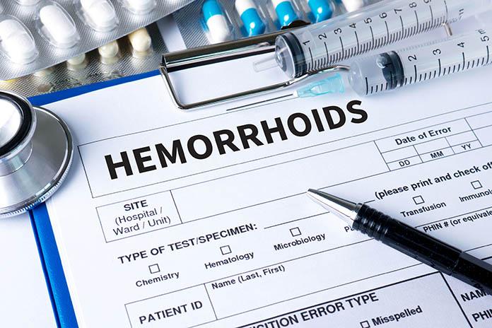 Causes-Of-Hemorrhoids