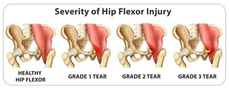 grades of hip flexor injury