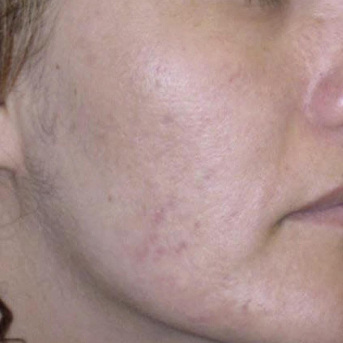 acne and skin after thermascan treatments