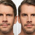 Dysport before and-after EverYoung Medspa Coquitlam Burnaby Vancouver BC