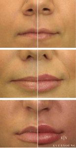 EverYoung lip augmentation mini lip to full lips lip injections coquitlam vancouver BC