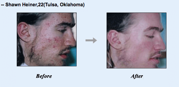 More acne by walden book pdf mike no