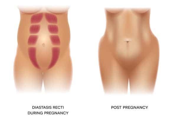 diastasis recti and rectus abdominis