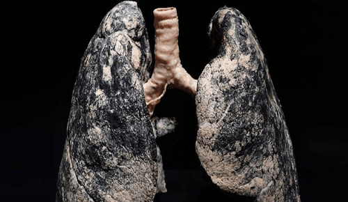 lungs-after-ears