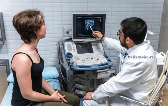 kurenie-pered-UZI-vnutrennih-organov